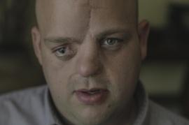 Mr. Bucky Bailey - a Teflon victim